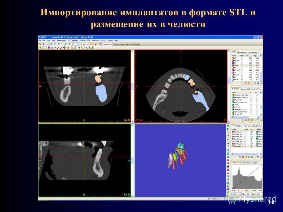 Импортирование имплантатов в формате STL и размещение их в челюсти 16
