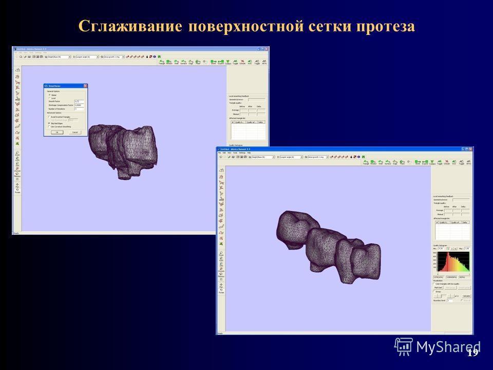 Сглаживание поверхностной сетки протеза 19