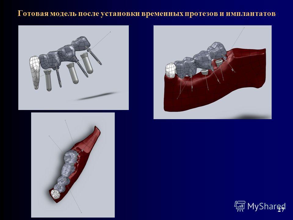 Готовая модель после установки временных протезов и имплантатов 27