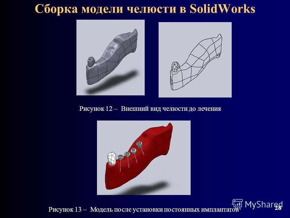 28 Сборка модели челюсти в SolidWorks 28 Рисунок 13 – Модель после установки постоянных имплантатов Рисунок 12 – Внешний вид челюсти до лечения