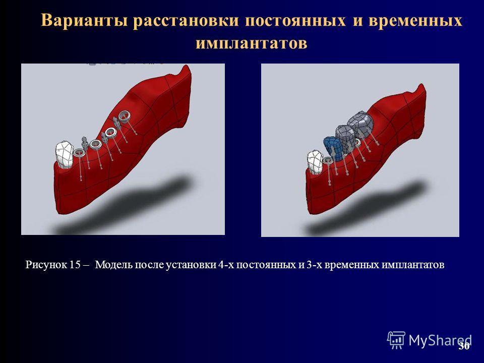 30 Варианты расстановки постоянных и временных имплантатов 30 Рисунок 15 – Модель после установки 4-х постоянных и 3-х временных имплантатов