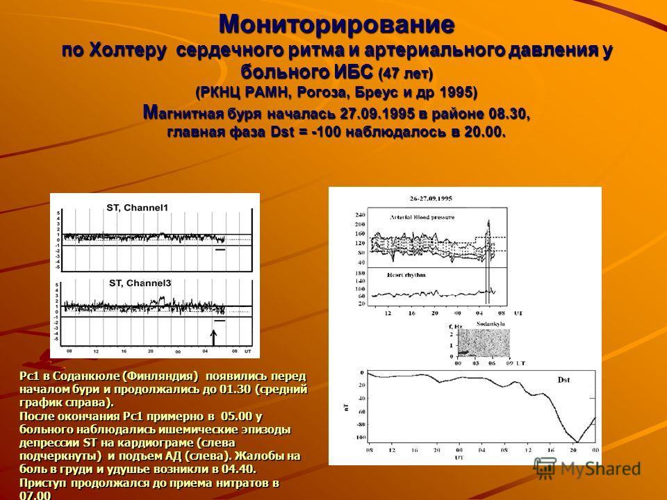Мониторирование по Холтеру сердечного ритма и артериального давления у больного ИБС (47 лет) (РКНЦ РАМН, Рогоза, Бреус и др 1995) М агнитная буря началась 27.09.1995 в районе 08.30, главная фаза Dst = -100 наблюдалось в 20.00. Рс1 в Соданкюле (Финлян