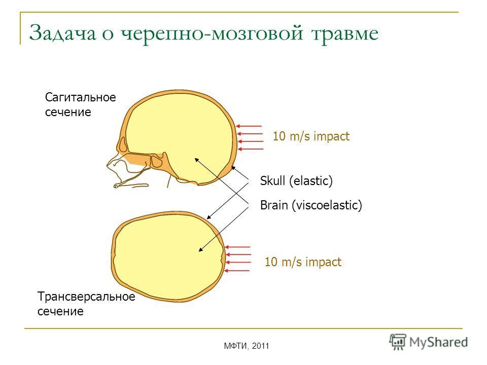 Задача о черепно-мозговой травме Сагитальное сечение Трансверсальное сечение Skull (elastic) Brain (viscoelastic) 10 m/s impact МФТИ, 2011