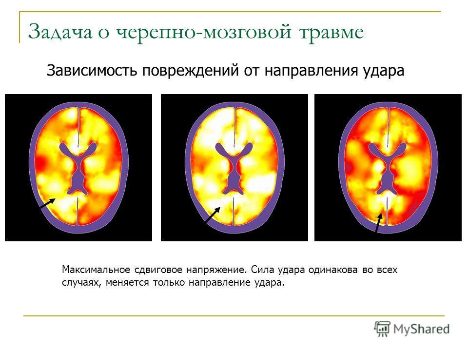 Зависимость повреждений от направления удара Задача о черепно-мозговой травме Максимальное сдвиговое напряжение. Сила удара одинакова во всех случаях, меняется только направление удара.