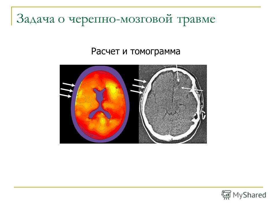 Расчет и томограмма Задача о черепно-мозговой травме