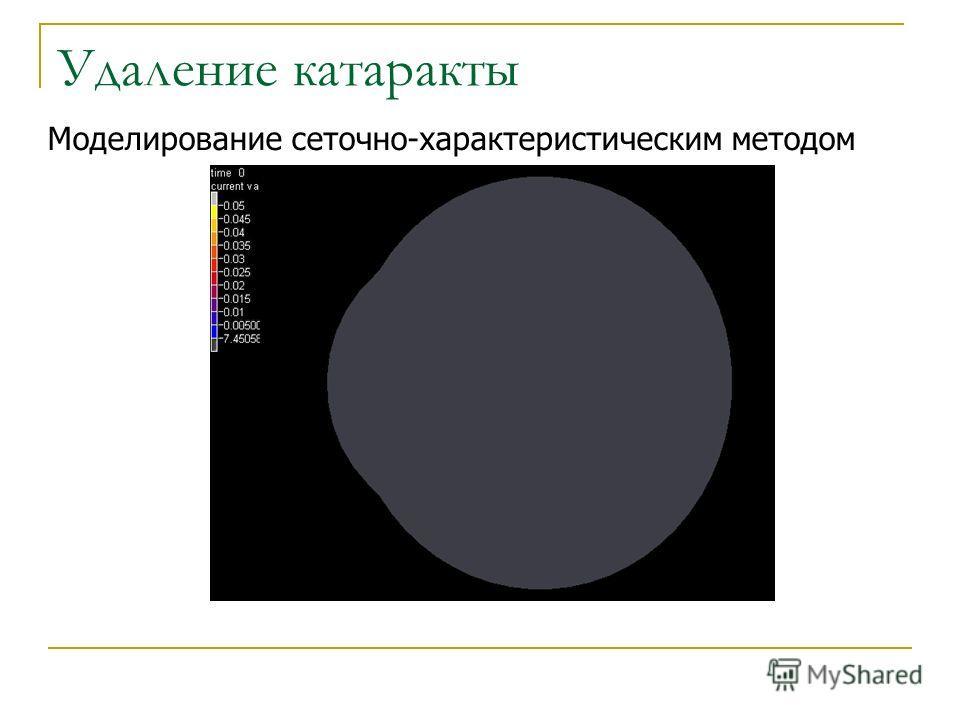 Удаление катаракты Моделирование сеточно-характеристическим методом