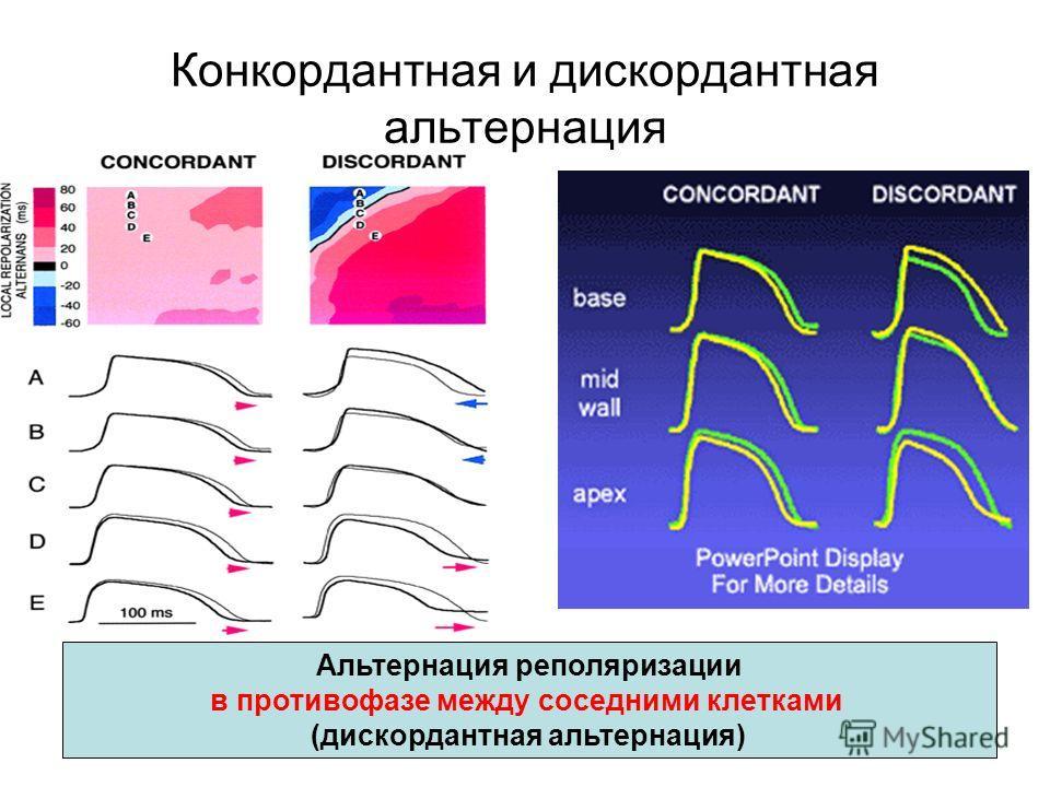 Конкордантная и дискордантная альтернация Альтернация реполяризации в противофазе между соседними клетками (дискордантная альтернация)