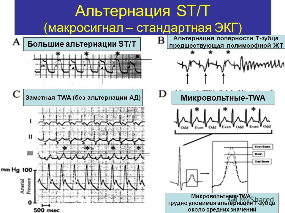 Альтернация ST/T (макросигнал – стандартная ЭКГ) Большие альтернации ST/T Альтернация полярности Т-зубца предшествующая полиморфной ЖТ Заметная TWA (без альтернации АД) Микровольтные-TWA трудно уловимая альтернация Т-зубца около средних значений Микр