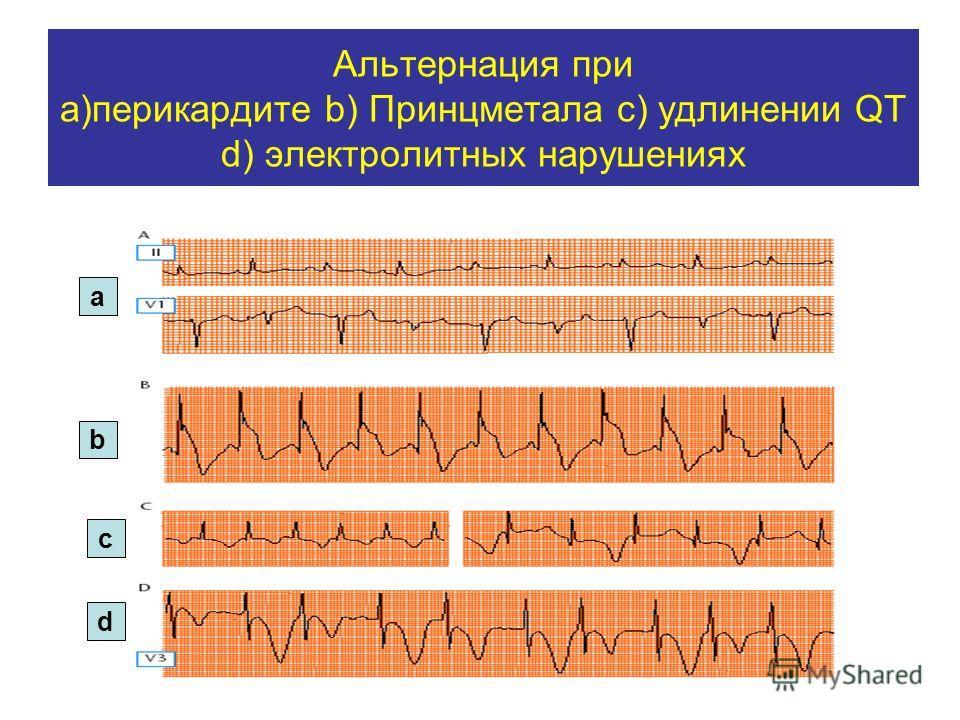 Альтернация при а)перикардите b) Принцметала с) удлинении QT d) электролитных нарушениях а b c d