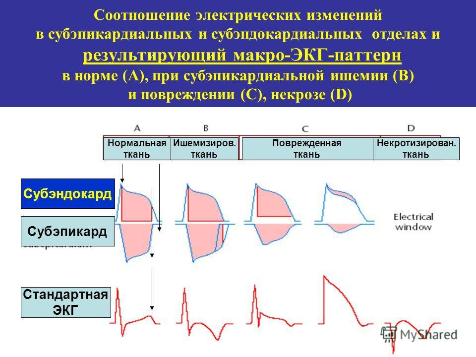 Соотношение электрических изменений в субэпикардиальных и субэндокардиальных отделах и результирующий макро-ЭКГ-паттерн в норме (А), при субэпикардиальной ишемии (В) и повреждении (С), некрозе (D) Нормальная ткань Ишемизиров. ткань Поврежденная ткань