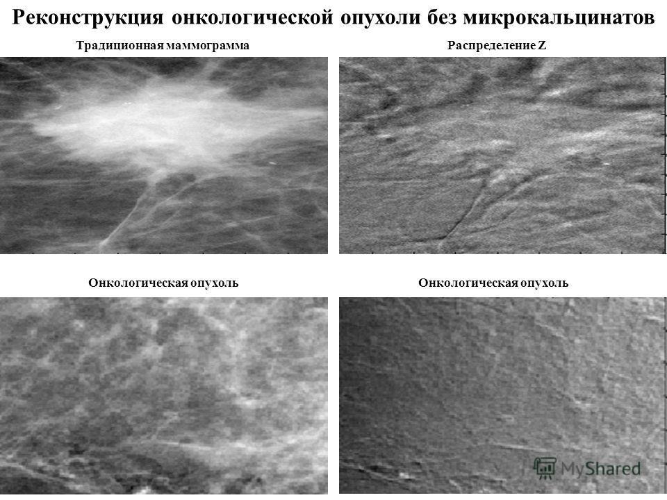 Реконструкция онкологической опухоли без микрокальцинатов Традиционная маммограмма Онкологическая опухоль Здоровая ткань Распределение Z
