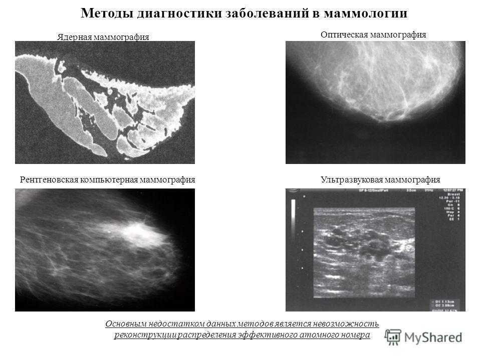 Методы диагностики заболеваний в маммологии Основным недостатком данных методов является невозможность реконструкции распределения эффективного атомного номера Ядерная маммография Оптическая маммография Рентгеновская компьютерная маммография Ультразв