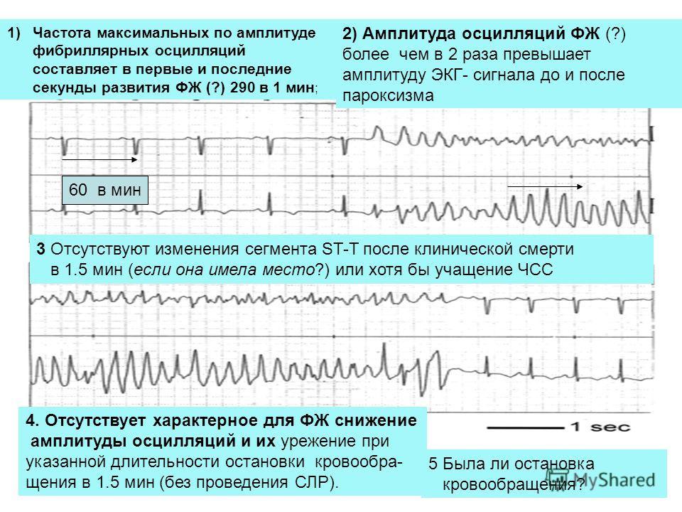 60 в мин 1)Частота максимальных по амплитуде фибриллярных осцилляций составляет в первые и последние секунды развития ФЖ (?) 290 в 1 мин ; 2) Амплитуда осцилляций ФЖ (?) более чем в 2 раза превышает амплитуду ЭКГ- сигнала до и после пароксизма 4. Отс