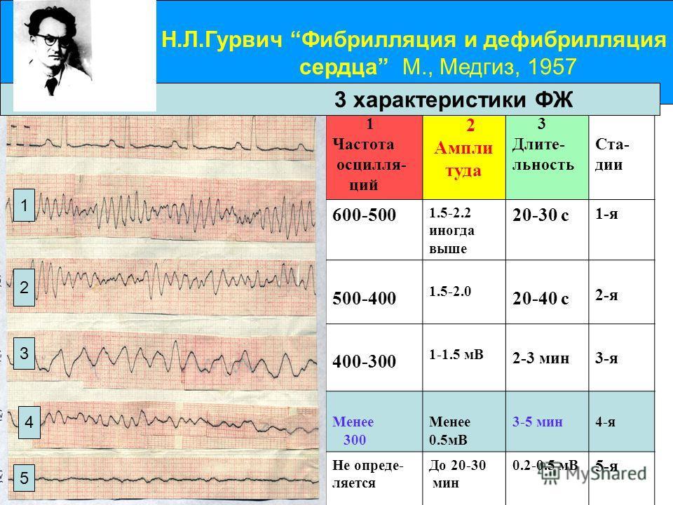 Динамика стадийности ФЖ Н.Л.Гурвич Фибрилляция и дефибрилляция сердца М., Медгиз, 1957 1 Частота осцилля- ций 2 Ампли туда 3 Длите- льность Ста- дии 600-500 1.5-2.2 иногда выше 20-30 с 1-я 500-400 1.5-2.0 20-40 с 2-я 400-300 1-1.5 мВ 2-3 мин3-я Менее