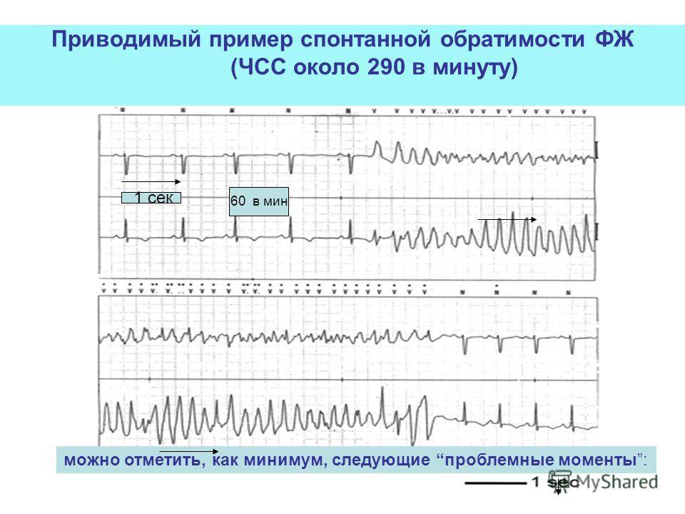 Приводимый пример спонтанной обратимости ФЖ (ЧСС около 290 в минуту) 60 в мин можно отметить, как минимум, следующие проблемные моменты: 1 сек