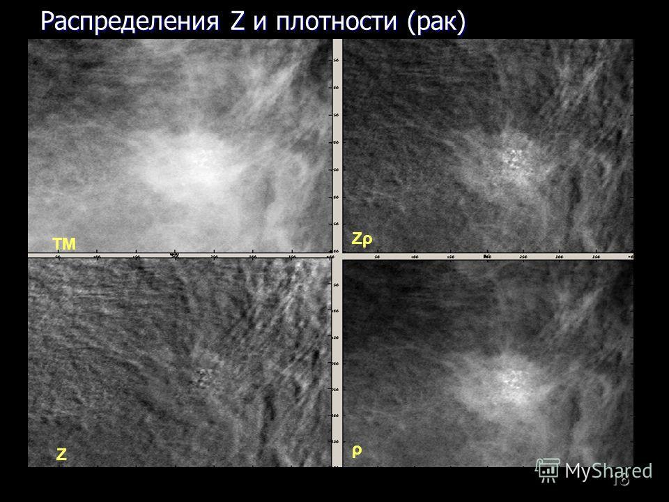 18 ТМ ρ Z ZρZρ Распределения Z и плотности (рак)
