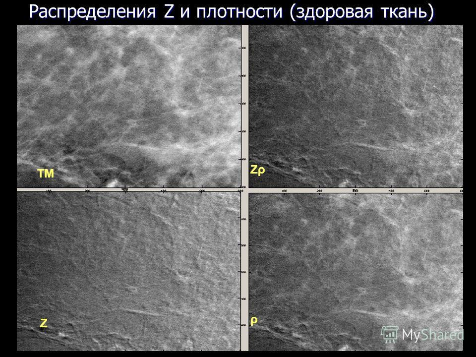 19 ТМ ρ Z ZρZρ Распределения Z и плотности (здоровая ткань)