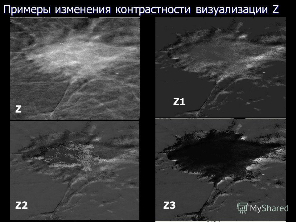 25 Примеры изменения контрастности визуализации Z Z1Z1 Z3Z3Z2Z2 Z