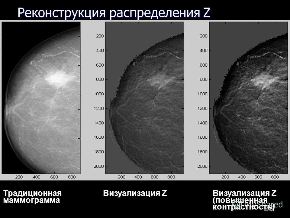 28 Традиционная Визуализация Z Визуализация Z маммограмма (повышенная контрастность) Реконструкция распределения Z