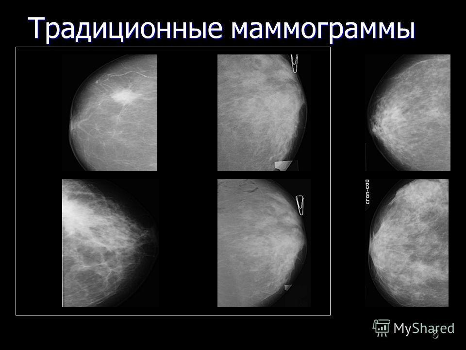 6 Традиционные маммограммы