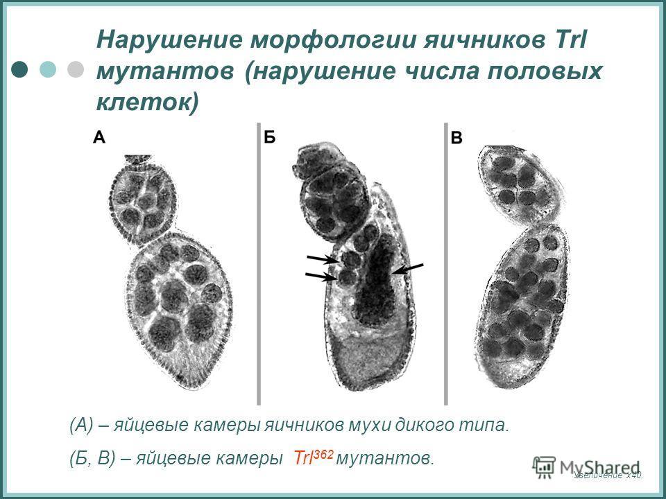 Нарушение морфологии яичников Trl мутантов (нарушение числа половых клеток) (А) – яйцевые камеры яичников мухи дикого типа. (Б, В) – яйцевые камеры Trl 362 мутантов. Увеличение х40.