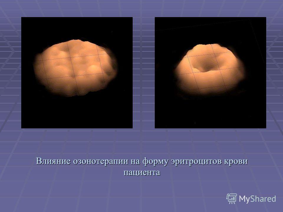 Влияние озонотерапии на форму эритроцитов крови пациента