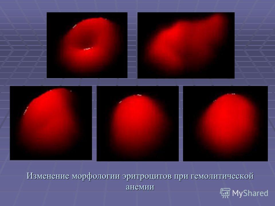 Изменение морфологии эритроцитов при гемолитической анемии