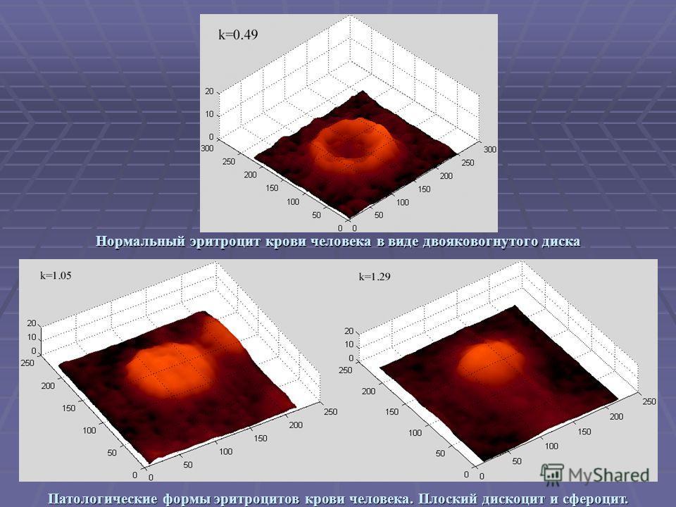 Сфероцит фото