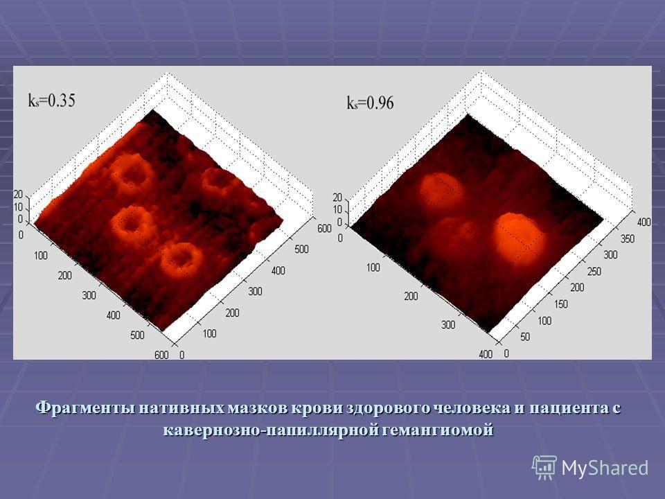 Фрагменты нативных мазков крови здорового человека и пациента с кавернозно-папиллярной гемангиомой