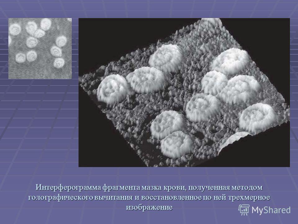 Интерферограмма фрагмента мазка крови, полученная методом голографического вычитания и восстановленное по ней трехмерное изображение