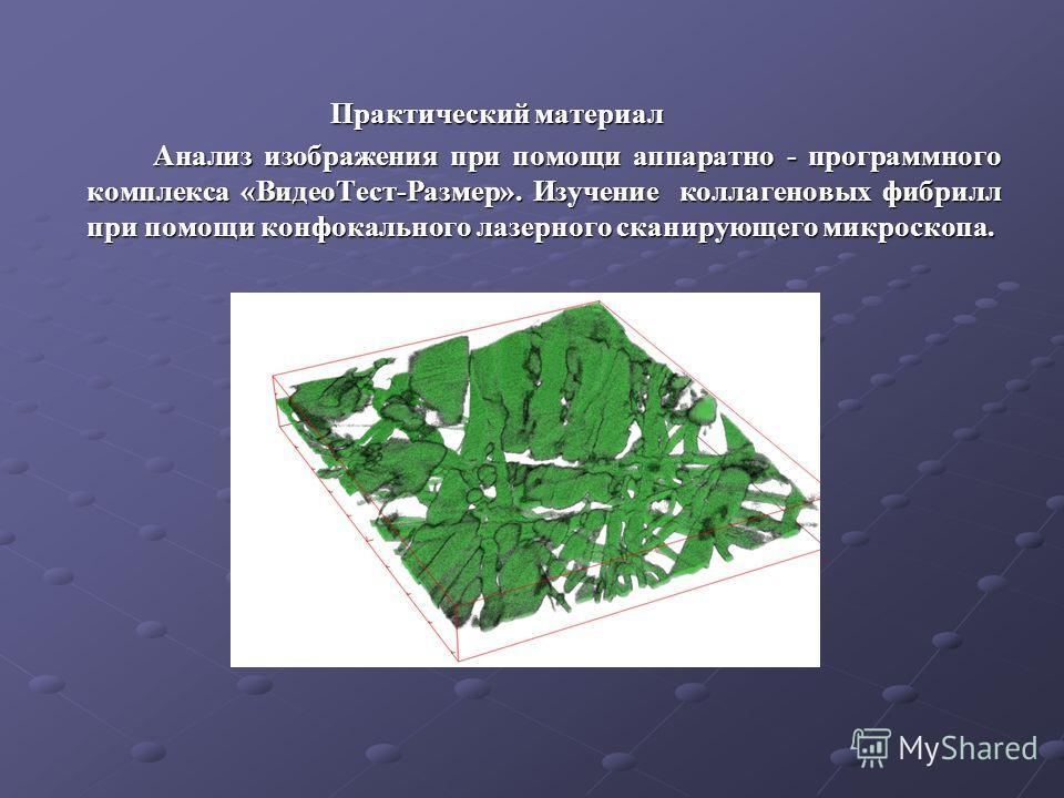 Практический материал Практический материал Анализ изображения при помощи аппаратно - программного комплекса «ВидеоТест-Размер». Изучение коллагеновых фибрилл при помощи конфокального лазерного сканирующего микроскопа.