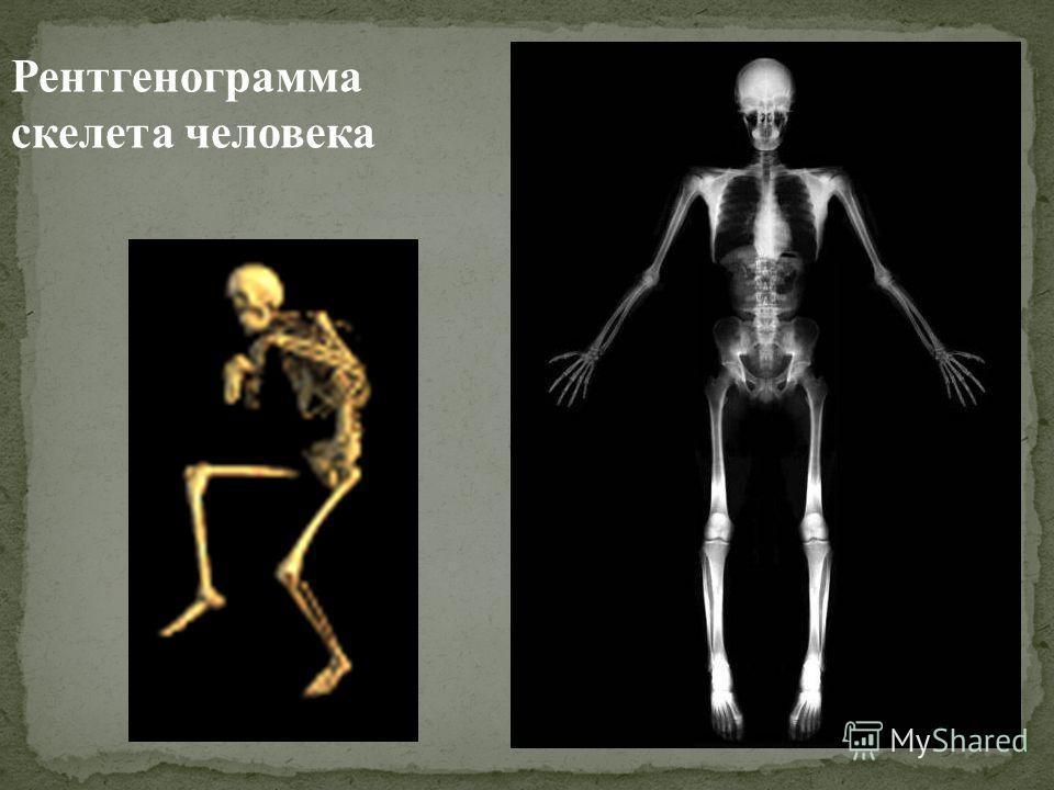 Рентгенограмма скелета человека