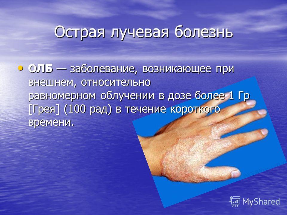 Острая лучевая болезнь ОЛБ заболевание, возникающее при внешнем, относительно равномерном облучении в дозе более 1 Гр [Грея] (100 рад) в течение короткого времени. ОЛБ заболевание, возникающее при внешнем, относительно равномерном облучении в дозе бо
