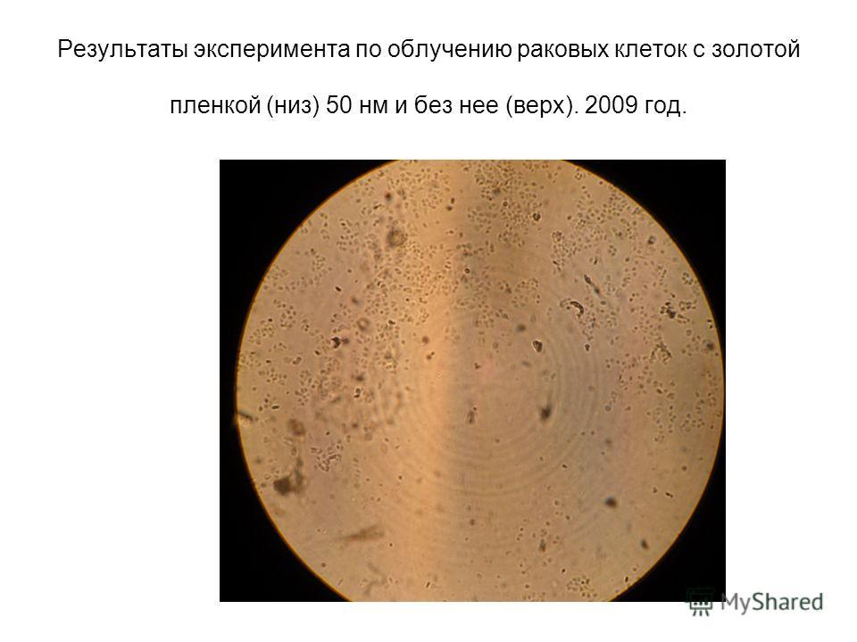Результаты эксперимента по облучению раковых клеток с золотой пленкой (низ) 50 нм и без нее (верх). 2009 год.