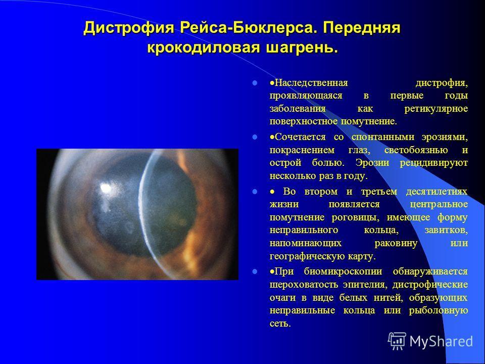 Дистрофия Рейса-Бюклерса. Передняя крокодиловая шагрень. Наследственная дистрофия, проявляющаяся в первые годы заболевания как ретикулярное поверхностное помутнение. Сочетается со спонтанными эрозиями, покраснением глаз, светобоязнью и острой болью.