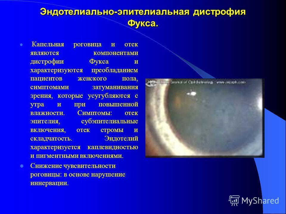 Эндотелиально-эпителиальная дистрофия Фукса. Капельная роговица и отек являются компонентами дистрофии Фукса и характеризуются преобладанием пациентов женского пола, симптомами затуманивания зрения, которые усугубляются с утра и при повышенной влажно