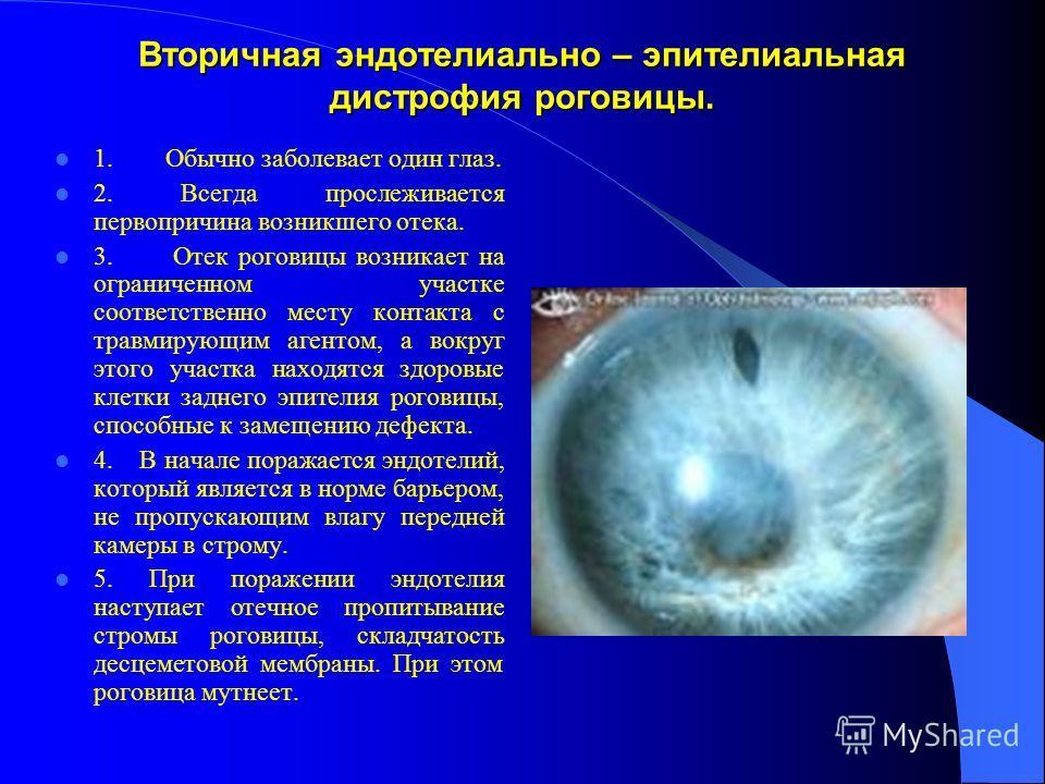 Вторичная эндотелиально – эпителиальная дистрофия роговицы. 1. Обычно заболевает один глаз. 2. Всегда прослеживается первопричина возникшего отека. 3. Отек роговицы возникает на ограниченном участке соответственно месту контакта с травмирующим агенто