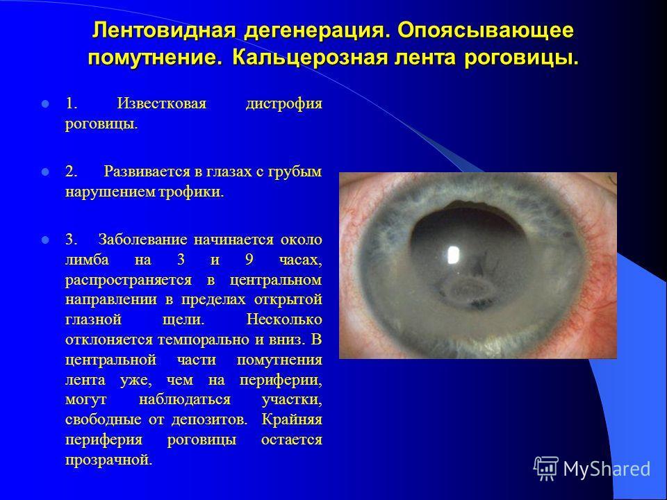 Лентовидная дегенерация. Опоясывающее помутнение. Кальцерозная лента роговицы. 1. Известковая дистрофия роговицы. 2. Развивается в глазах с грубым нарушением трофики. 3. Заболевание начинается около лимба на 3 и 9 часах, распространяется в центрально