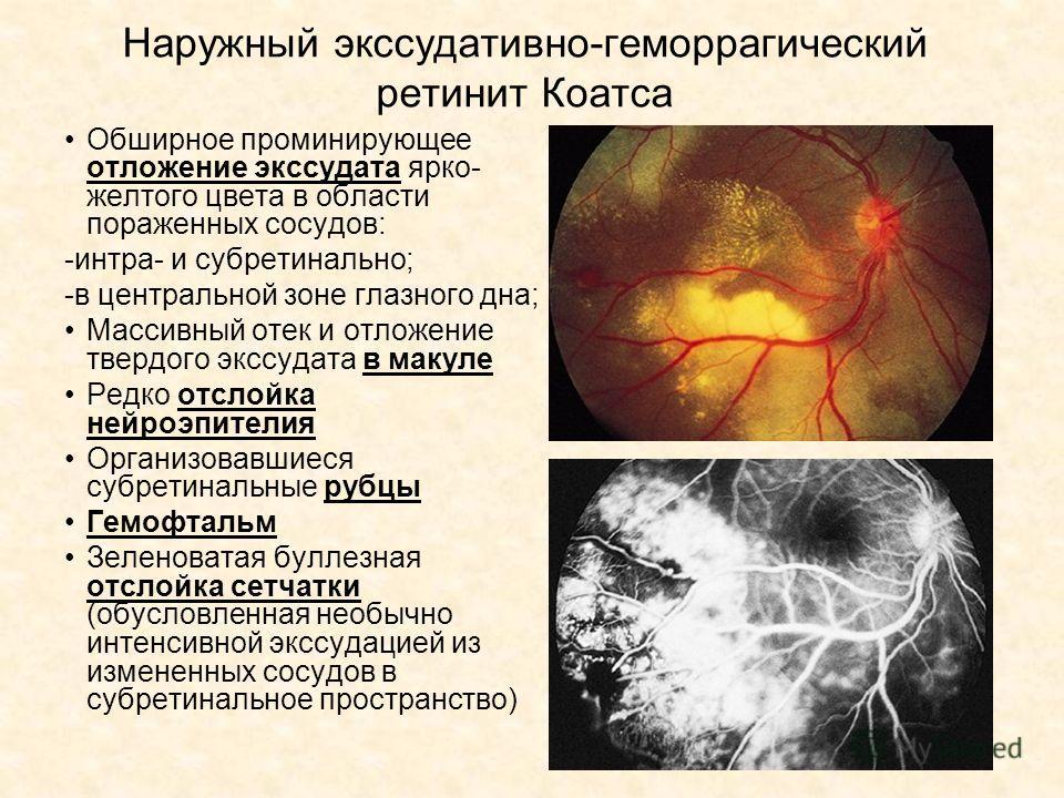 Наружный экссудативно-геморрагический ретинит Коатса Обширное проминирующее отложение экссудата ярко- желтого цвета в области пораженных сосудов: -интра- и субретинально; -в центральной зоне глазного дна; Массивный отек и отложение твердого экссудата