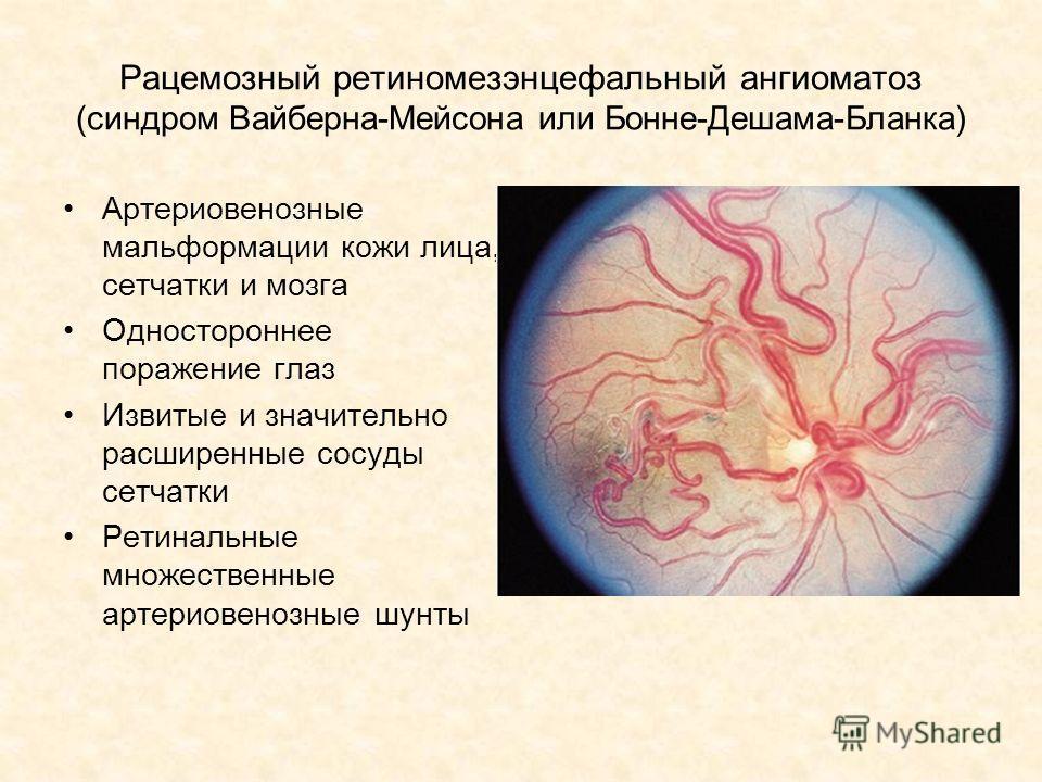 Рацемозный ретиномезэнцефальный ангиоматоз (синдром Вайберна-Мейсона или Бонне-Дешама-Бланка) Артериовенозные мальформации кожи лица, сетчатки и мозга Одностороннее поражение глаз Извитые и значительно расширенные сосуды сетчатки Ретинальные множеств