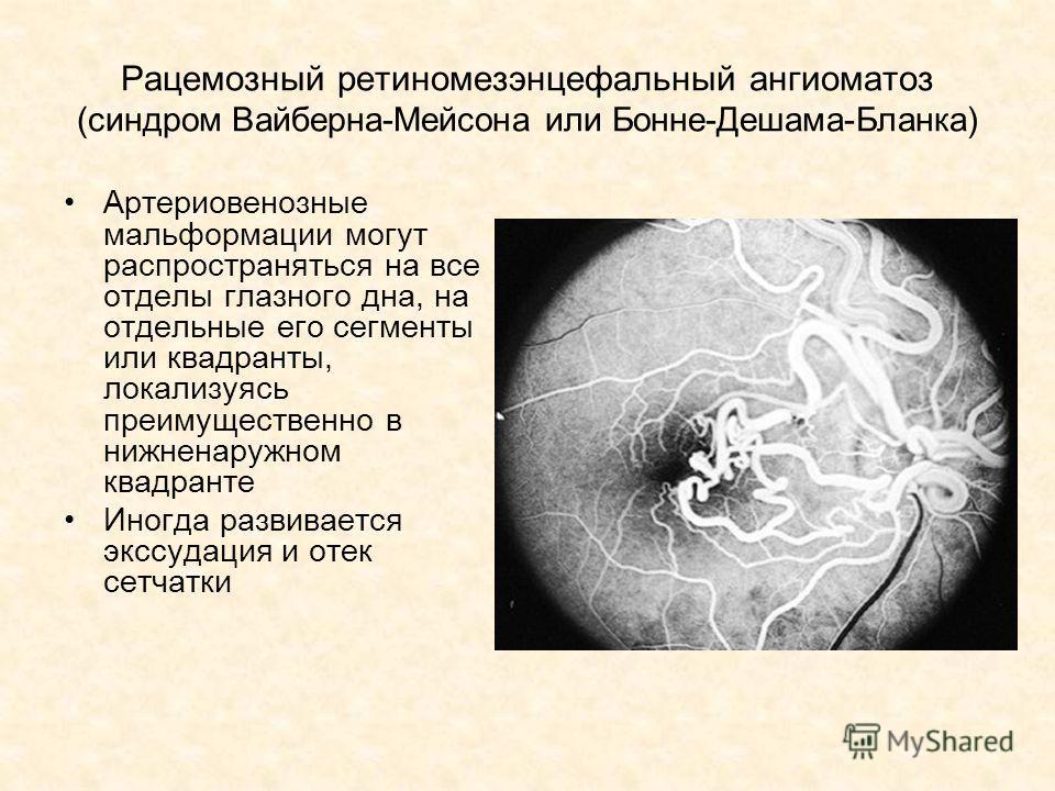 Рацемозный ретиномезэнцефальный ангиоматоз (синдром Вайберна-Мейсона или Бонне-Дешама-Бланка) Артериовенозные мальформации могут распространяться на все отделы глазного дна, на отдельные его сегменты или квадранты, локализуясь преимущественно в нижне
