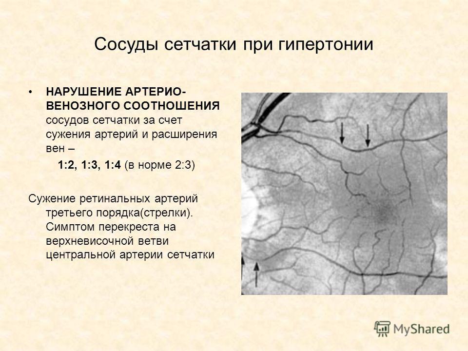 Сосуды сетчатки при гипертонии НАРУШЕНИЕ АРТЕРИО- ВЕНОЗНОГО СООТНОШЕНИЯ сосудов сетчатки за счет сужения артерий и расширения вен – 1:2, 1:3, 1:4 (в норме 2:3) Сужение ретинальных артерий третьего порядка(стрелки). Симптом перекреста на верхневисочно