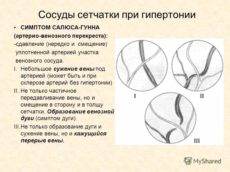 Сосуды сетчатки при гипертонии СИМПТОМ САЛЮСА-ГУННА (артерио-венозного перекреста): -сдавление (нередко и смещение) уплотненной артерией участка венозного сосуда. I.Небольшое сужение вены под артерией (может быть и при склерозе артерий без гипертонии