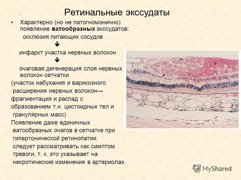 Ретинальные экссудаты Характерно (но не патогномонично) появление ватообразных экссудатов: окклюзия питающих сосудов инфаркт участка нервных волокон очаговая дегенерация слоя нервных волокон сетчатки (участок набухания и варикозного расширения нервны
