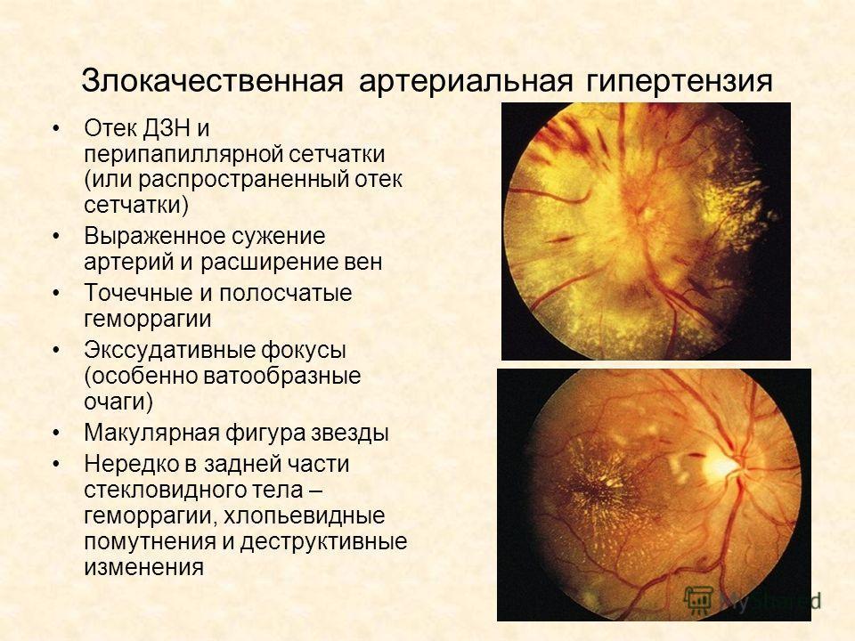Злокачественная артериальная гипертензия Отек ДЗН и перипапиллярной сетчатки (или распространенный отек сетчатки) Выраженное сужение артерий и расширение вен Точечные и полосчатые геморрагии Экссудативные фокусы (особенно ватообразные очаги) Макулярн