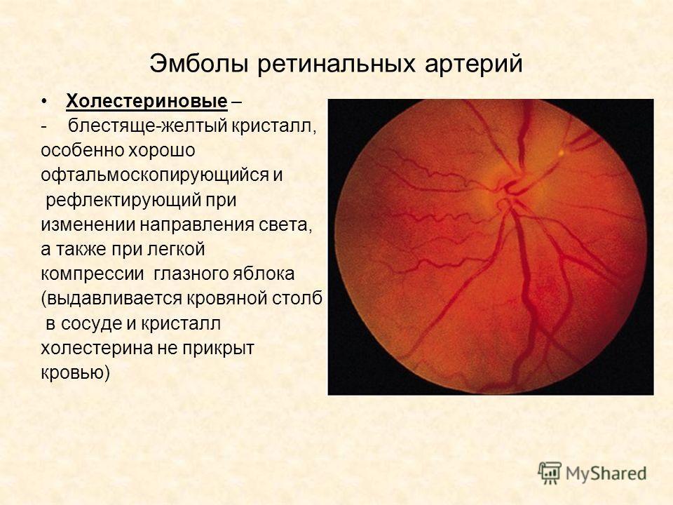 Эмболы ретинальных артерий Холестериновые – - блестяще-желтый кристалл, особенно хорошо офтальмоскопирующийся и рефлектирующий при изменении направления света, а также при легкой компрессии глазного яблока (выдавливается кровяной столб в сосуде и кри