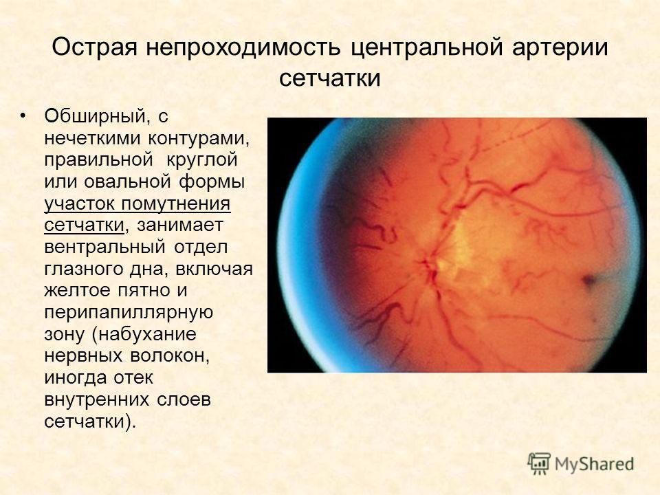 Острая непроходимость центральной артерии сетчатки Обширный, с нечеткими контурами, правильной круглой или овальной формы участок помутнения сетчатки, занимает вентральный отдел глазного дна, включая желтое пятно и перипапиллярную зону (набухание нер