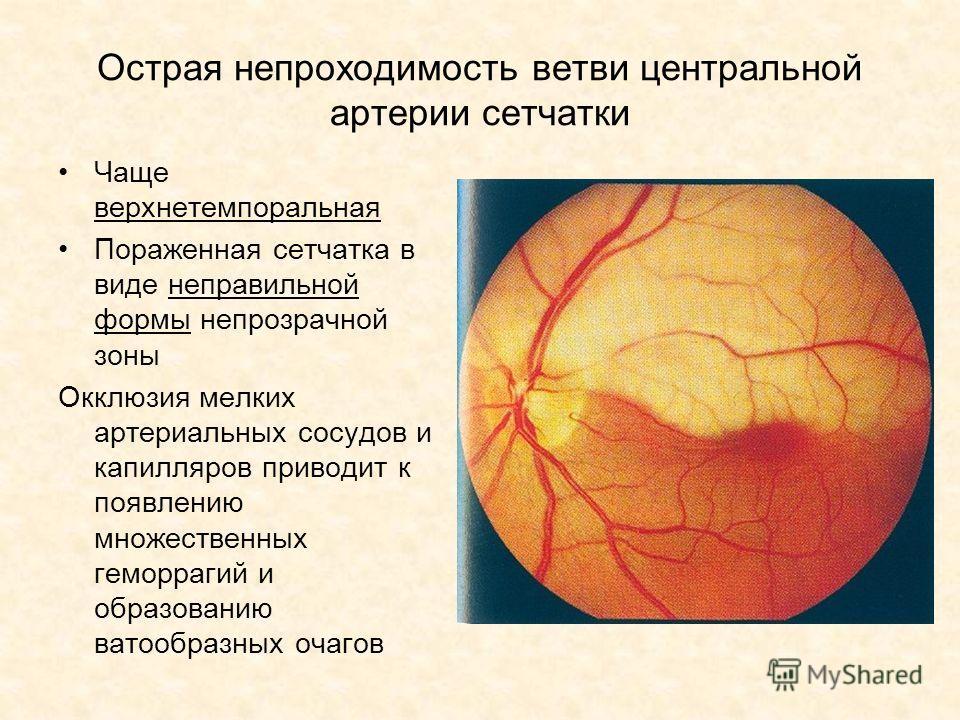 Острая непроходимость ветви центральной артерии сетчатки Чаще верхнетемпоральная Пораженная сетчатка в виде неправильной формы непрозрачной зоны Окклюзия мелких артериальных сосудов и капилляров приводит к появлению множественных геморрагий и образов