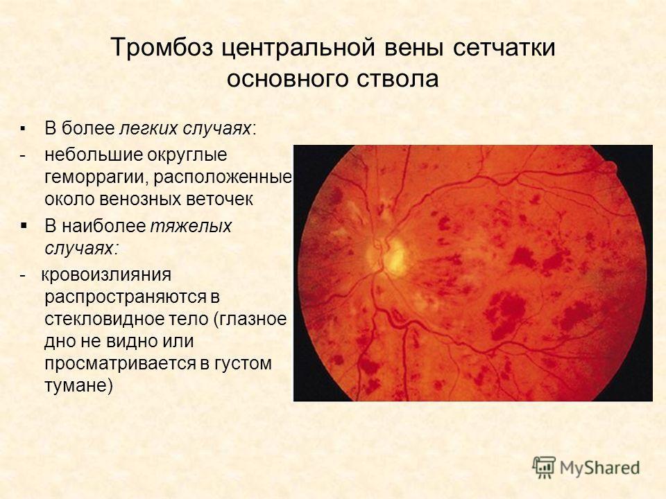 Тромбоз центральной вены сетчатки основного ствола В более легких случаях: -небольшие округлые геморрагии, расположенные около венозных веточек В наиболее тяжелых случаях: - кровоизлияния распространяются в стекловидное тело (глазное дно не видно или