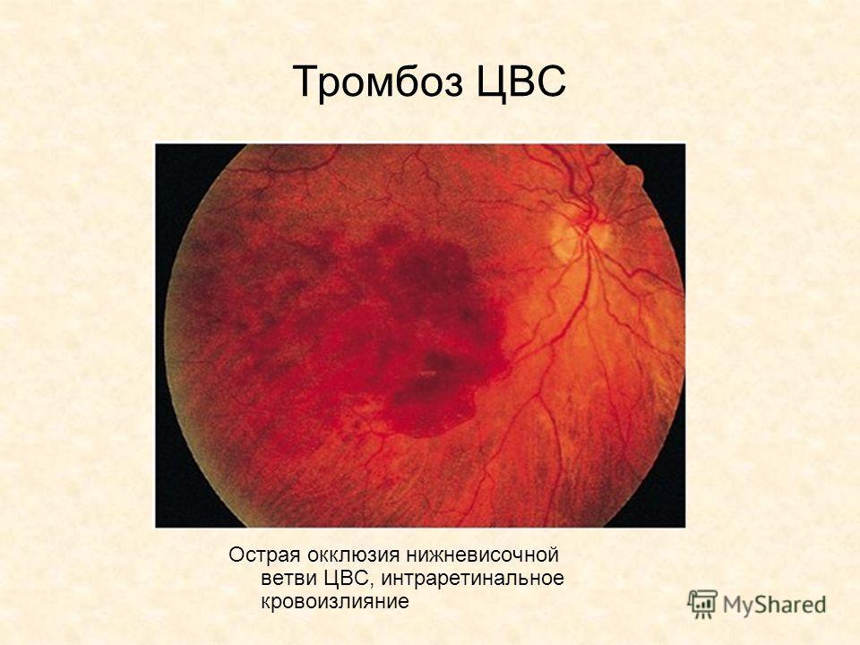 Тромбоз ЦВС Острая окклюзия нижневисочной ветви ЦВС, интраретинальное кровоизлияние